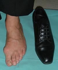 foot shoe